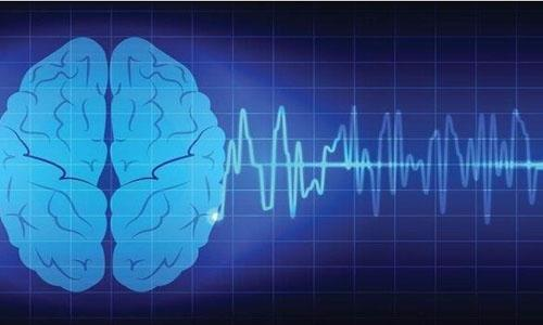 痴呆症的脑波活动缓慢可预测认知功能障碍的严重程度