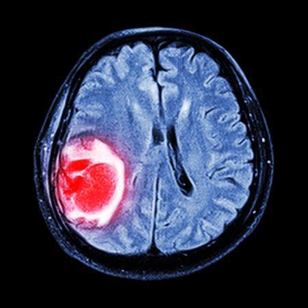 研究人员发现一种可以阻止最具侵略性的脑瘤扩散的方法