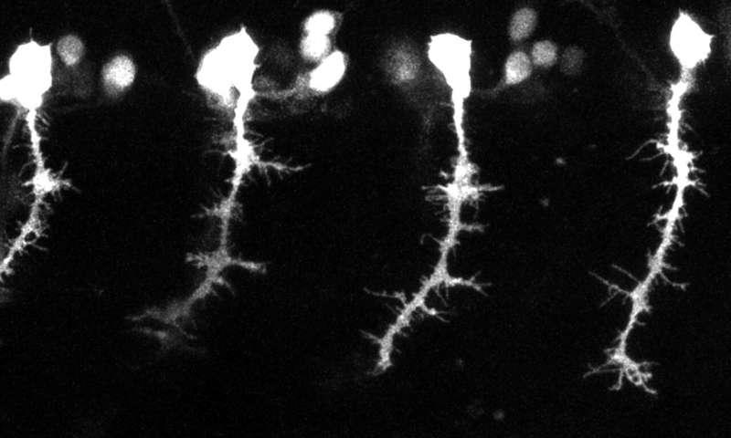 研究人员恢复斑马鱼的神经联系