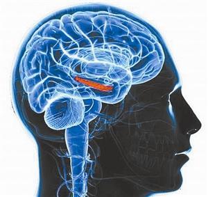 深度脑部刺激可改善MS症状