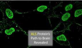 ALS蛋白进入大脑的路径已记录