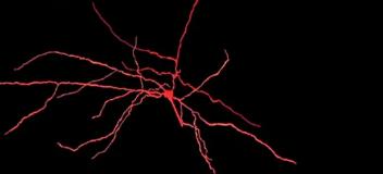 在综合计算机模型中捕获的皮质神经元多样性