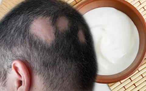 每天将这种乳霜涂在头皮上可以刺激头发生长