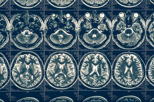 脑部扫描可以观察自尊的变化