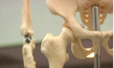 演技发现白藜芦醇和运动可降低老年痴呆症老年患者骨折的风险