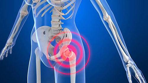 犬类研究发现与髋关节发育不良和骨关节炎相关的新基因