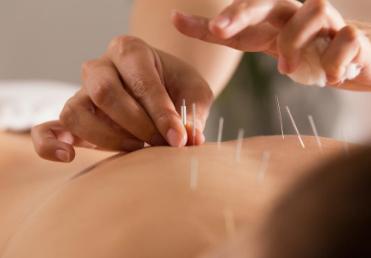 针灸可能是治疗慢性头痛的有效辅助疗法