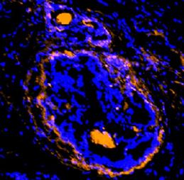 癌性肿瘤周围细胞被新的成像剂照射