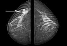 在五年的研究中断层合成优于数字乳腺摄影