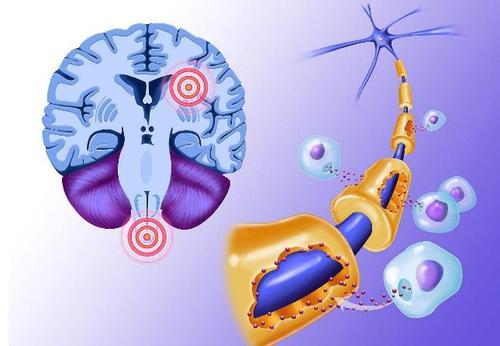 新发现将有助于靶向多发性硬化症免疫反应