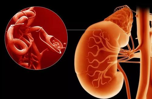 尿毒症是否遗传取决于是什么原因导致的尿毒症