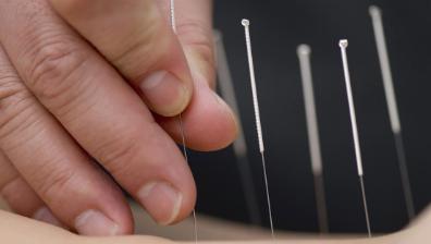 针刺对膝骨关节炎患者步态的影响