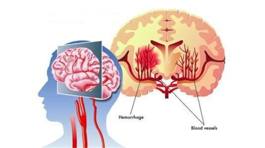 Penn研究表明局部缺血性中风可能是由于现有危险因素引起的