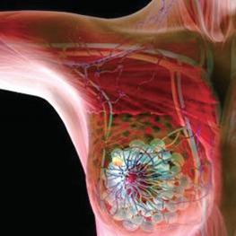 研究人员批评研究呼吁扩大乳腺癌的基因检测