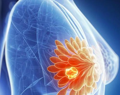 在患有转移性癌症的年轻女性中 乳腺癌的治疗费用最高