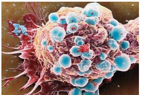 乳腺癌细胞会将免疫细胞转变为盟友